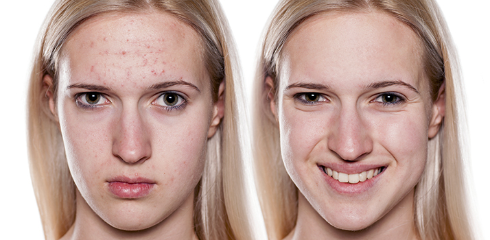 Cómo deshacerse del acné